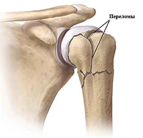 Как выглядит перелом плечевого сустава