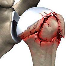 Перелом плечевого сустава: виды, симптомы и лечение