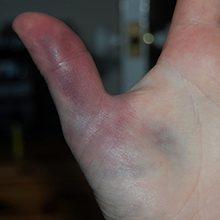 Как отличить ушиб от перелома пальца руки?