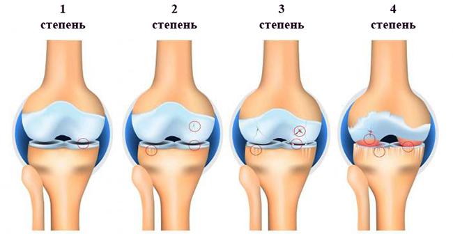 Степени остеоарртоза