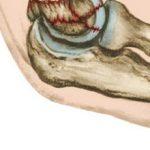 Трещина в локтевом суставе: симптомы, диагностика и лечение