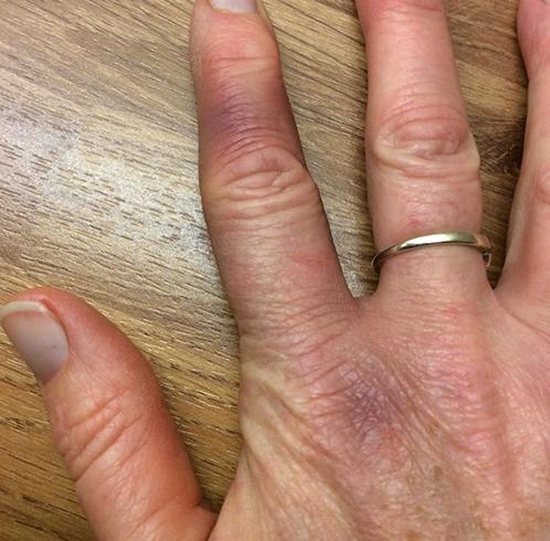 Как выглядит ушиб пальца