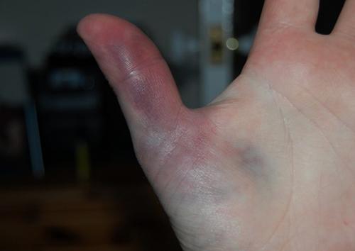 Сильный ушиб пальца