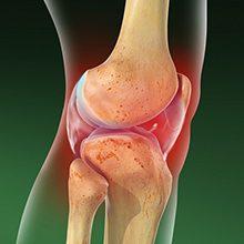 Артрит коленного сустава — причины, симптомы и лечение