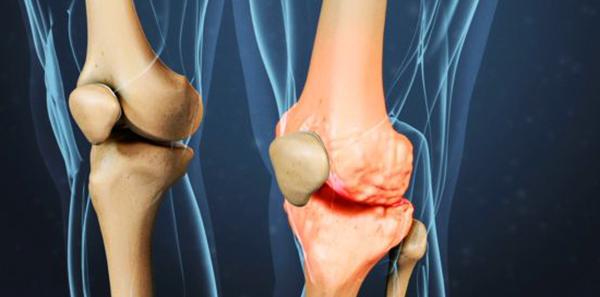 Артрит коленного сустава 3 степени лечение