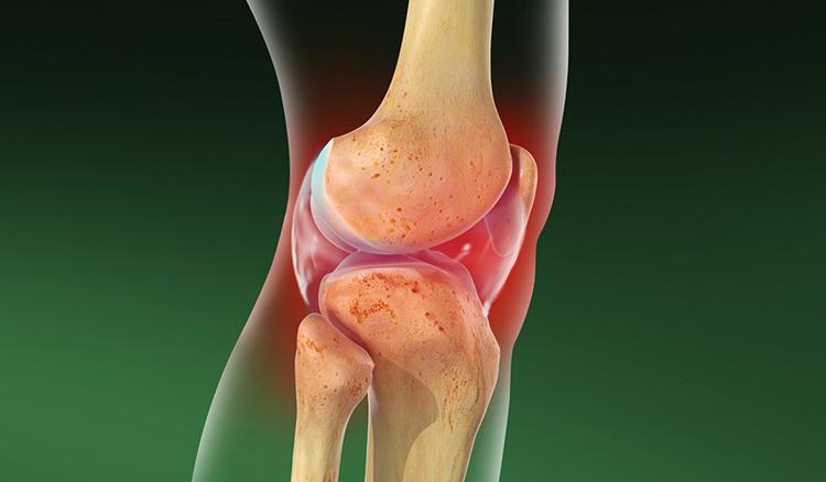 Как выглядит артрит