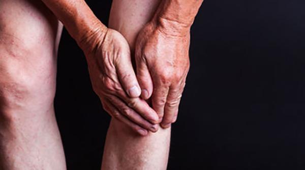 Симптомы артрита колена